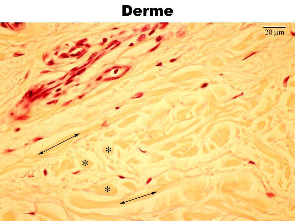 Derme