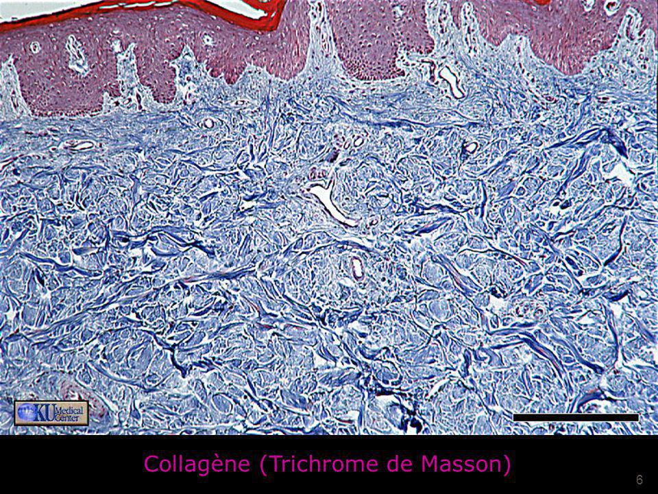 Collagène Collagène (Trichrome de Masson) Mardi 20 février 2007