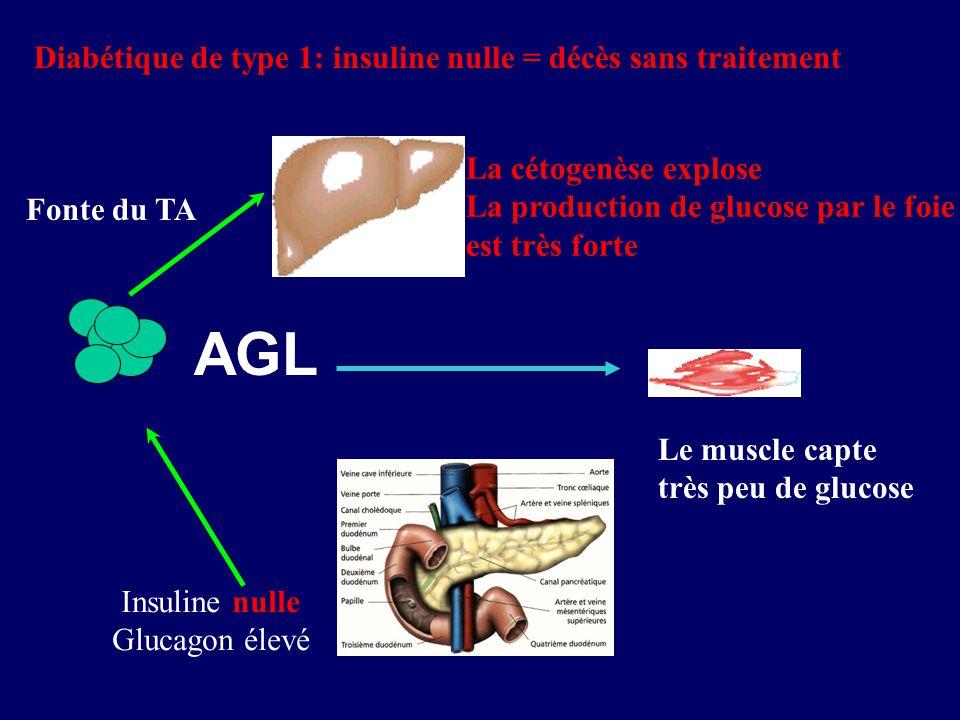 AGL Diabétique de type 1: insuline nulle = décès sans traitement