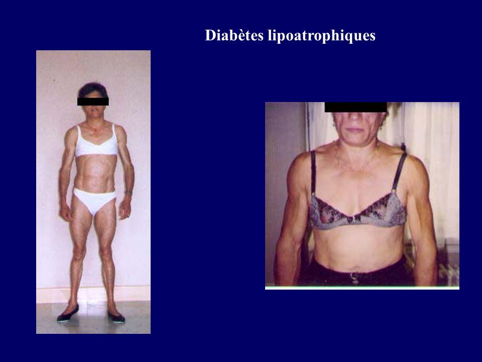 Diabètes lipoatrophiques