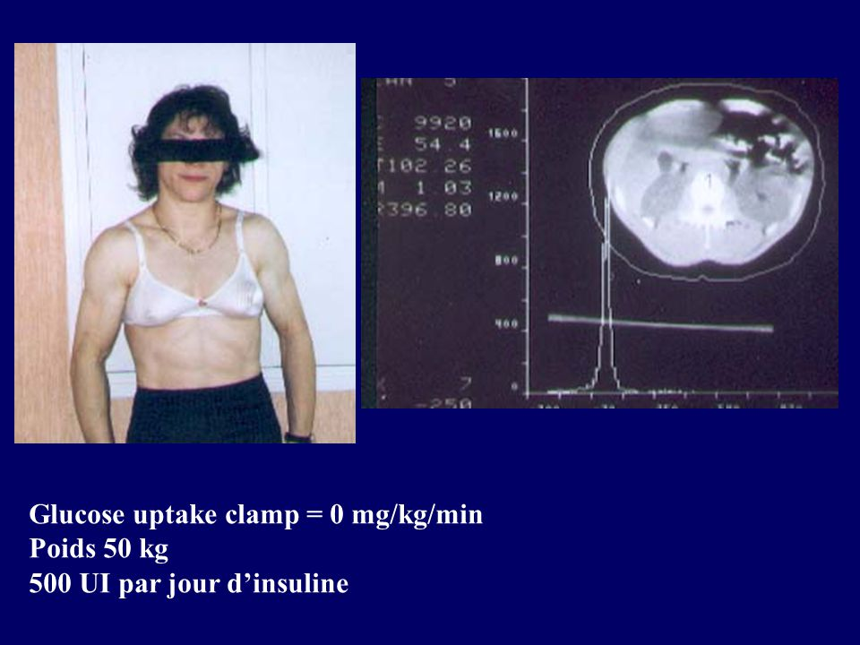 Glucose uptake clamp = 0 mg/kg/min