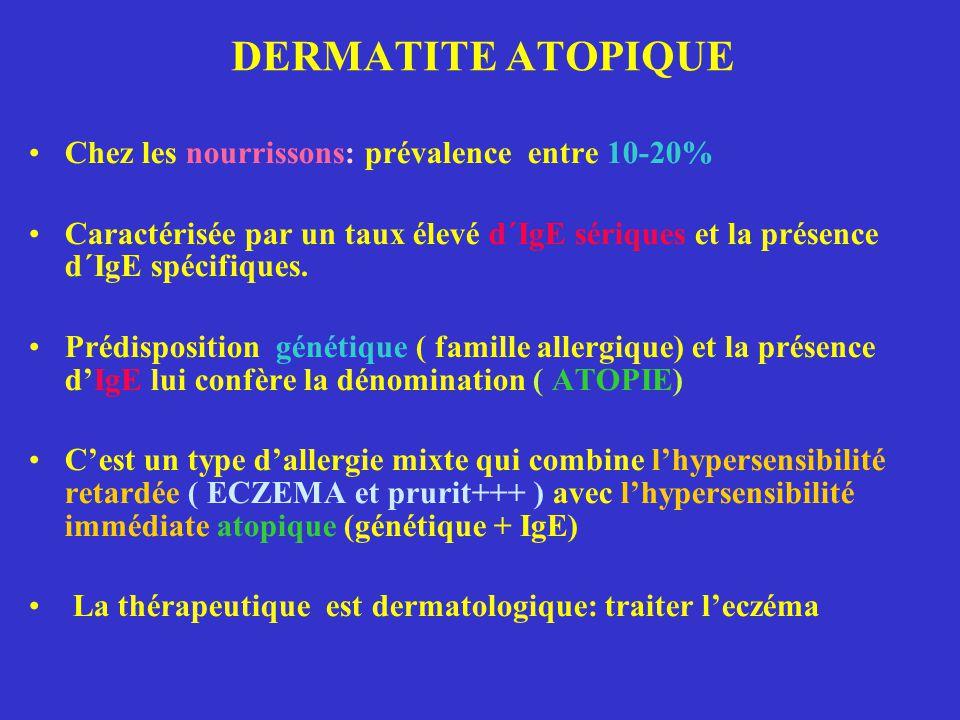 DERMATITE ATOPIQUE Chez les nourrissons: prévalence entre 10-20%
