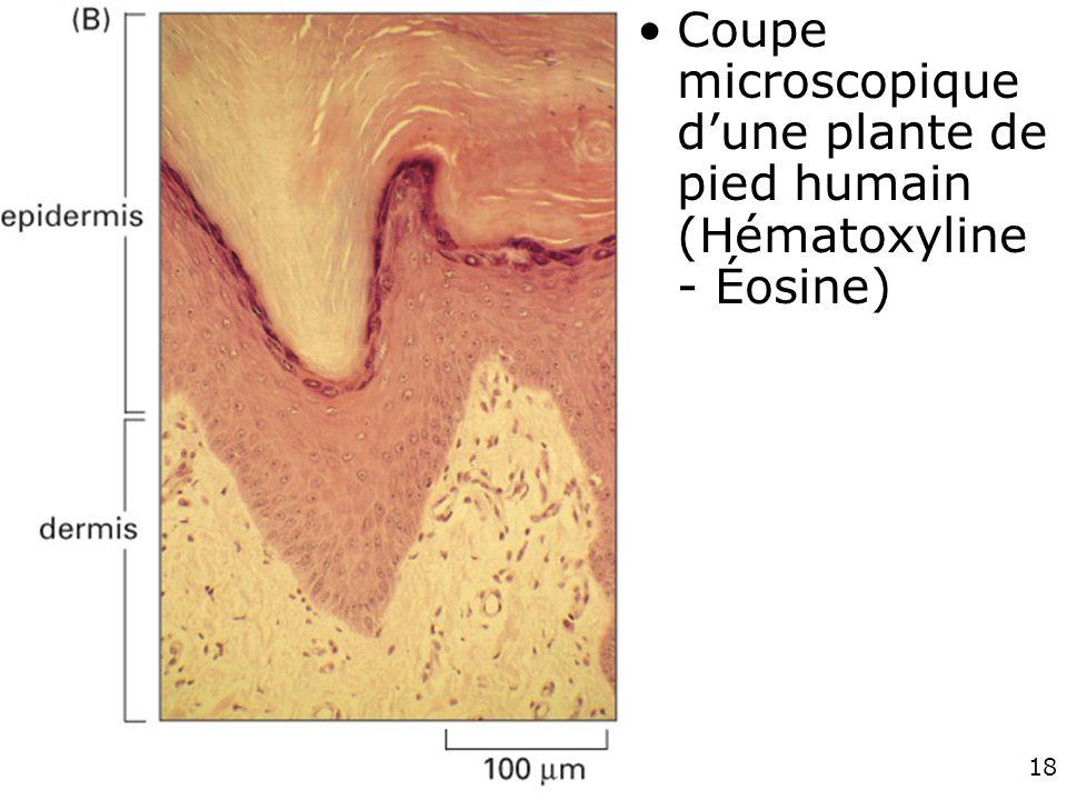 Coupe microscopique d'une plante de pied humain (Hématoxyline - Éosine)