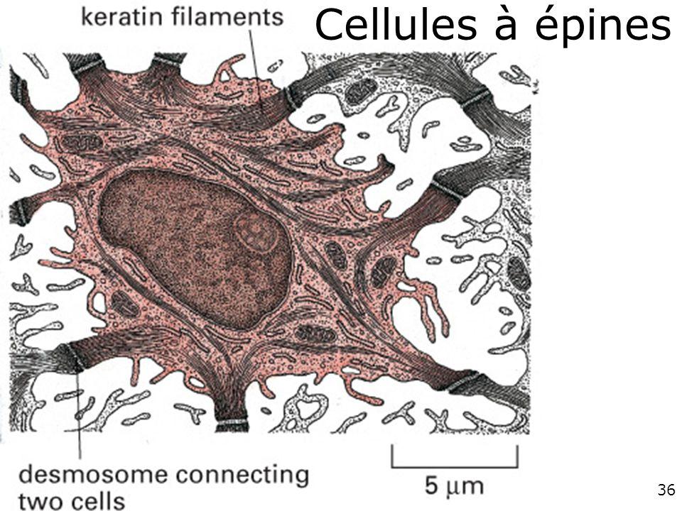 Cellules à épines #1p1261