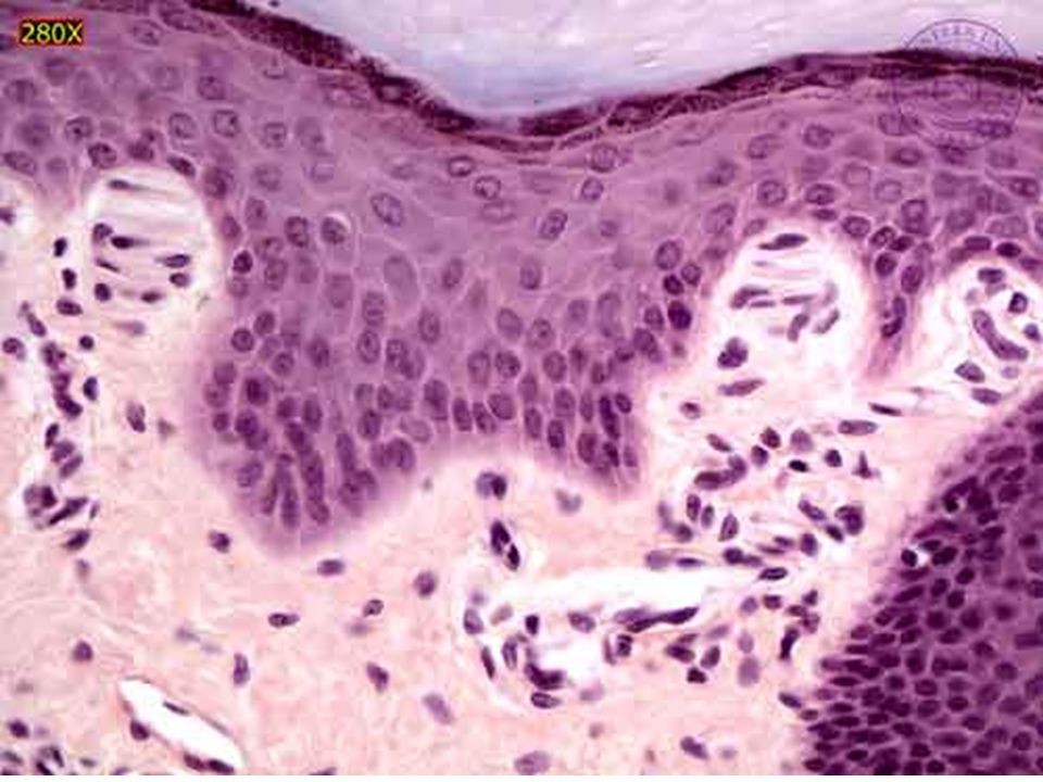 Couche des cellules granuleuses
