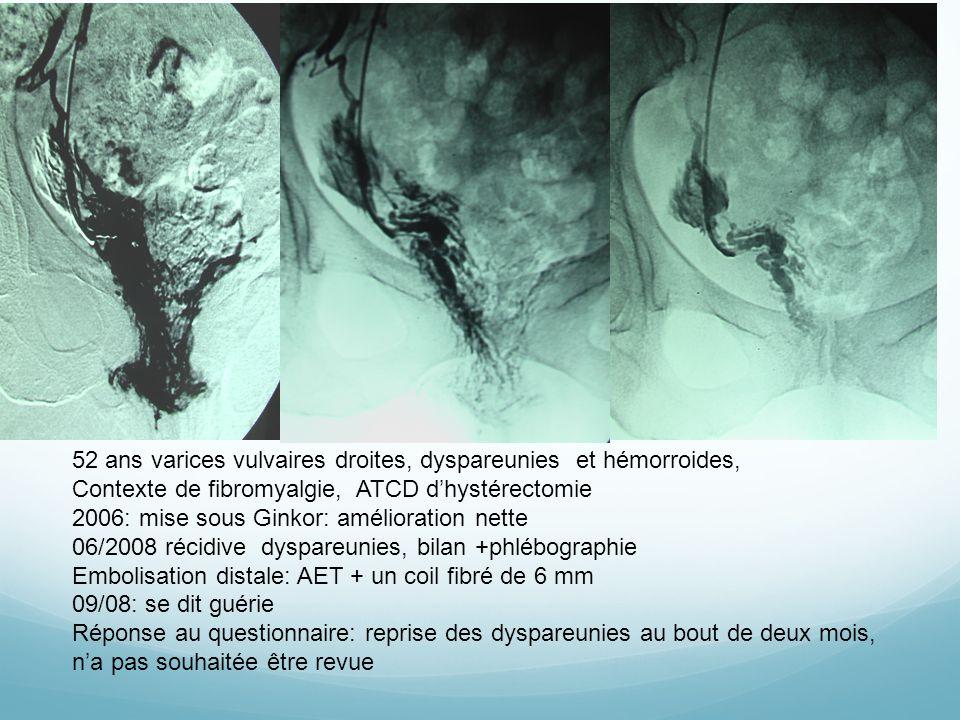 52 ans varices vulvaires droites, dyspareunies et hémorroides,