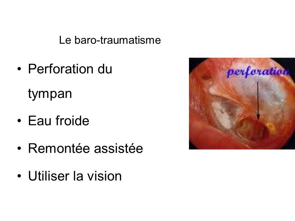 Perforation du tympan Eau froide Remontée assistée Utiliser la vision