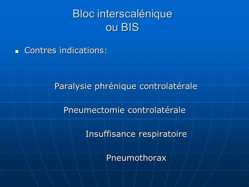 Bloc interscalénique ou BIS