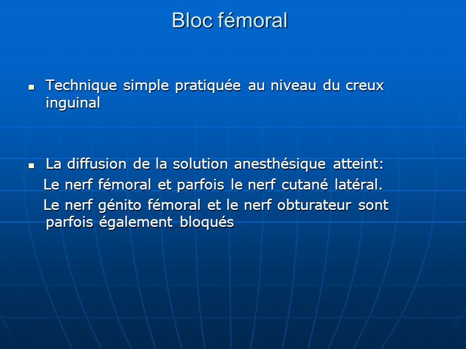 Bloc fémoral Technique simple pratiquée au niveau du creux inguinal