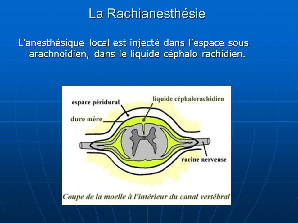La Rachianesthésie L'anesthésique local est injecté dans l'espace sous arachnoïdien, dans le liquide céphalo rachidien.