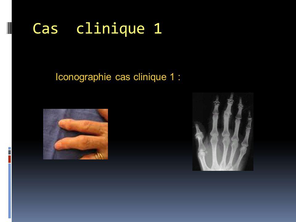 Cas clinique 1 Iconographie cas clinique 1 :