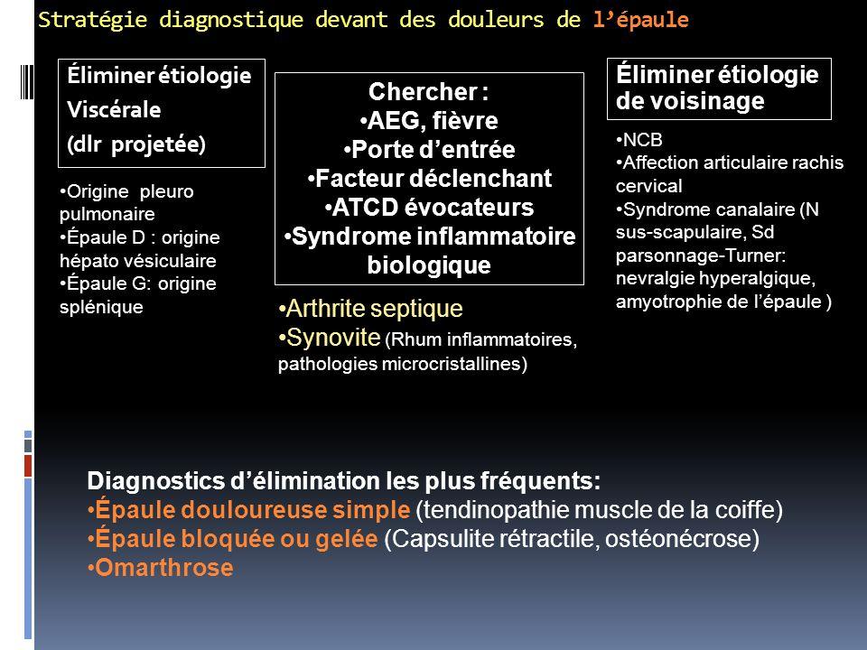 Stratégie diagnostique devant des douleurs de l'épaule