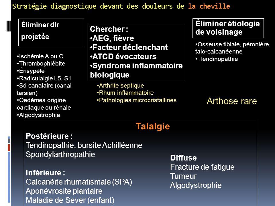 Stratégie diagnostique devant des douleurs de la cheville