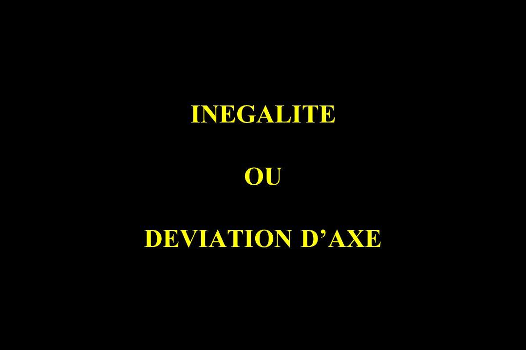 INEGALITE OU DEVIATION D'AXE