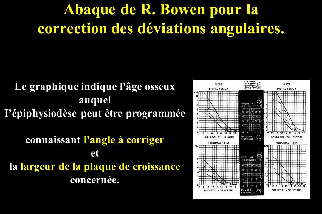 Abaque de R. Bowen pour la correction des déviations angulaires.