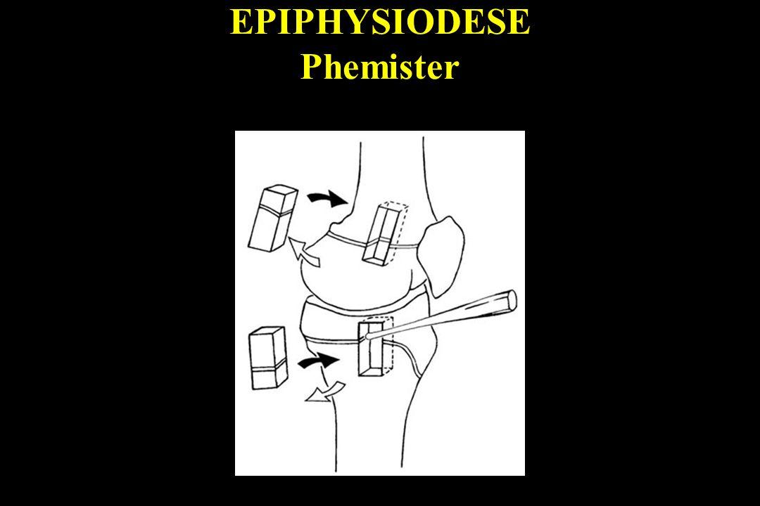 EPIPHYSIODESE Phemister
