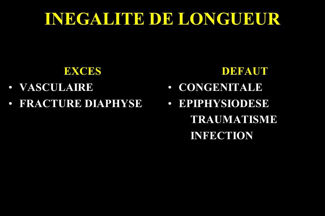 INEGALITE DE LONGUEUR EXCES VASCULAIRE FRACTURE DIAPHYSE DEFAUT