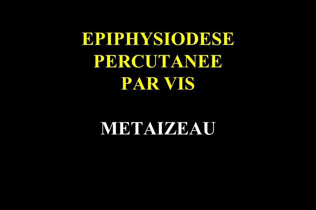 EPIPHYSIODESE PERCUTANEE PAR VIS METAIZEAU