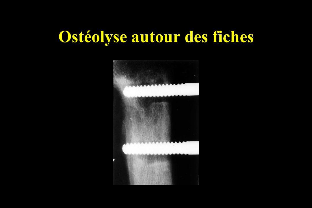 Ostéolyse autour des fiches