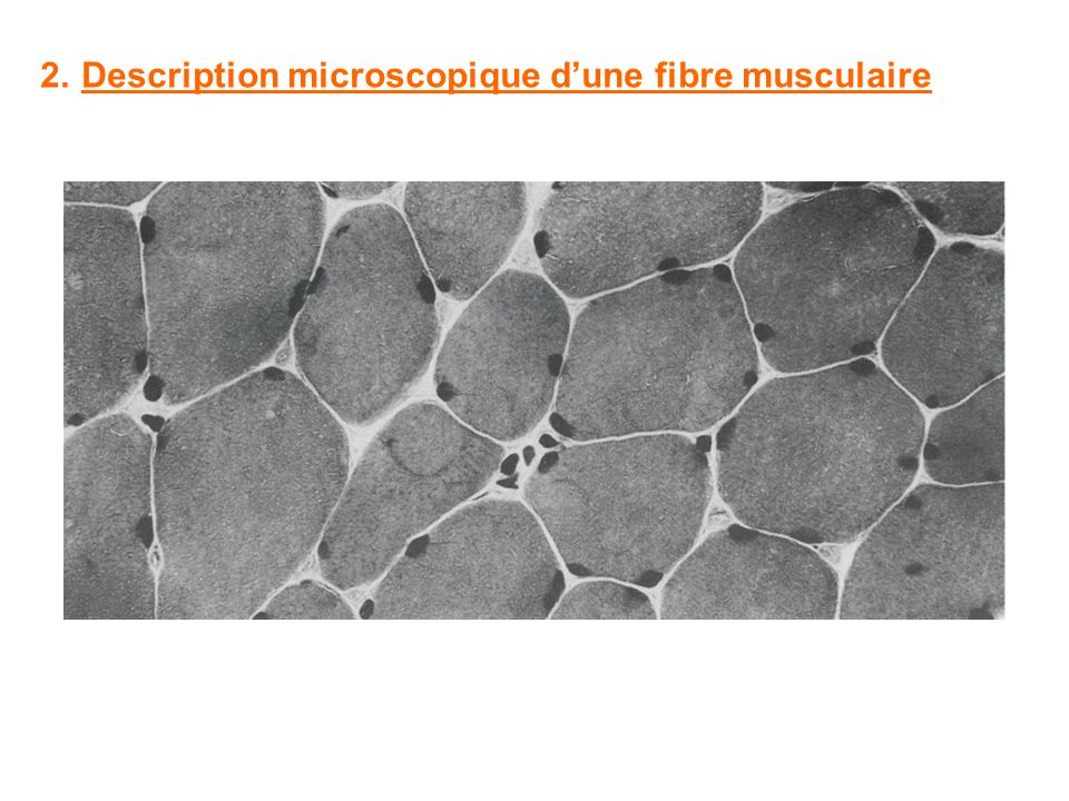 2. Description microscopique d'une fibre musculaire
