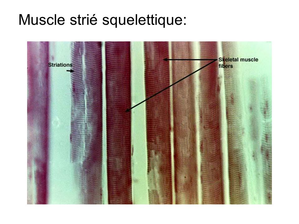 Muscle strié squelettique: