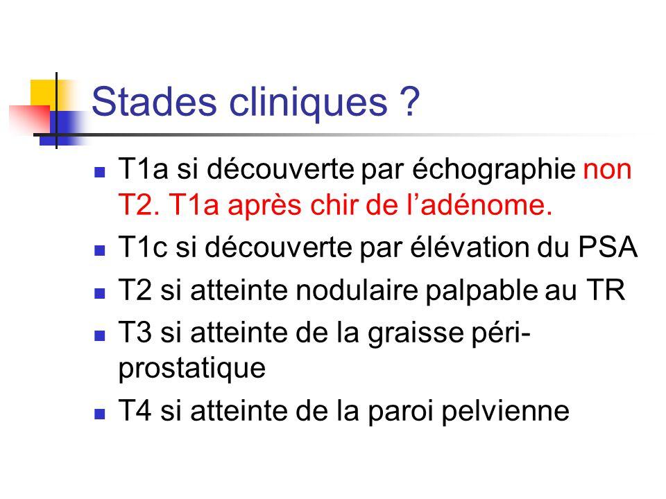 Stades cliniques T1a si découverte par échographie non T2. T1a après chir de l'adénome. T1c si découverte par élévation du PSA.