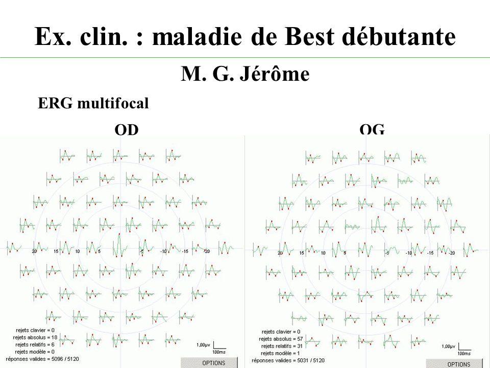 Ex. clin. : maladie de Best débutante