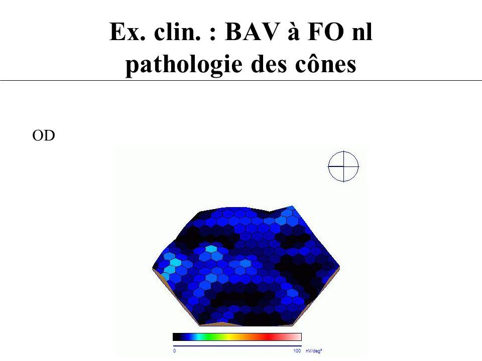 Ex. clin. : BAV à FO nl pathologie des cônes