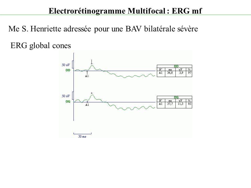 Electrorétinogramme Multifocal : ERG mf