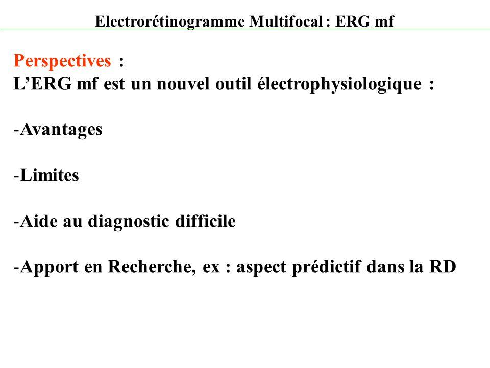L'ERG mf est un nouvel outil électrophysiologique : Avantages Limites