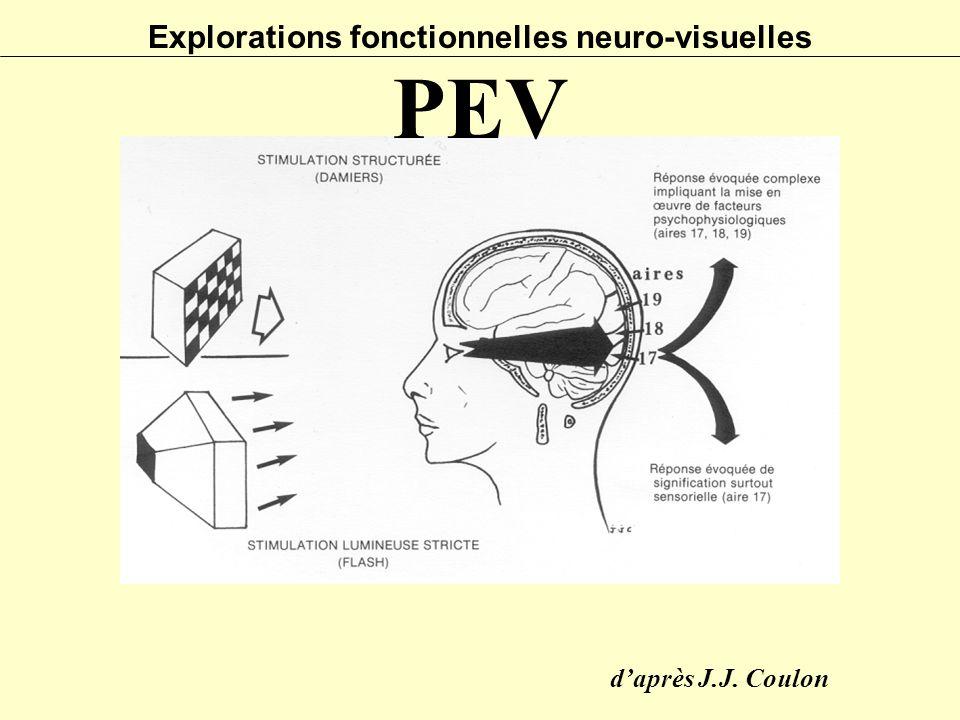 Explorations fonctionnelles neuro-visuelles