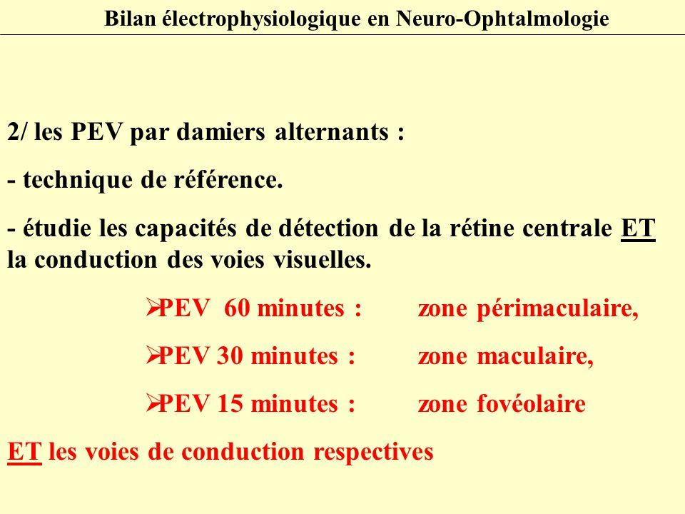 2/ les PEV par damiers alternants : - technique de référence.