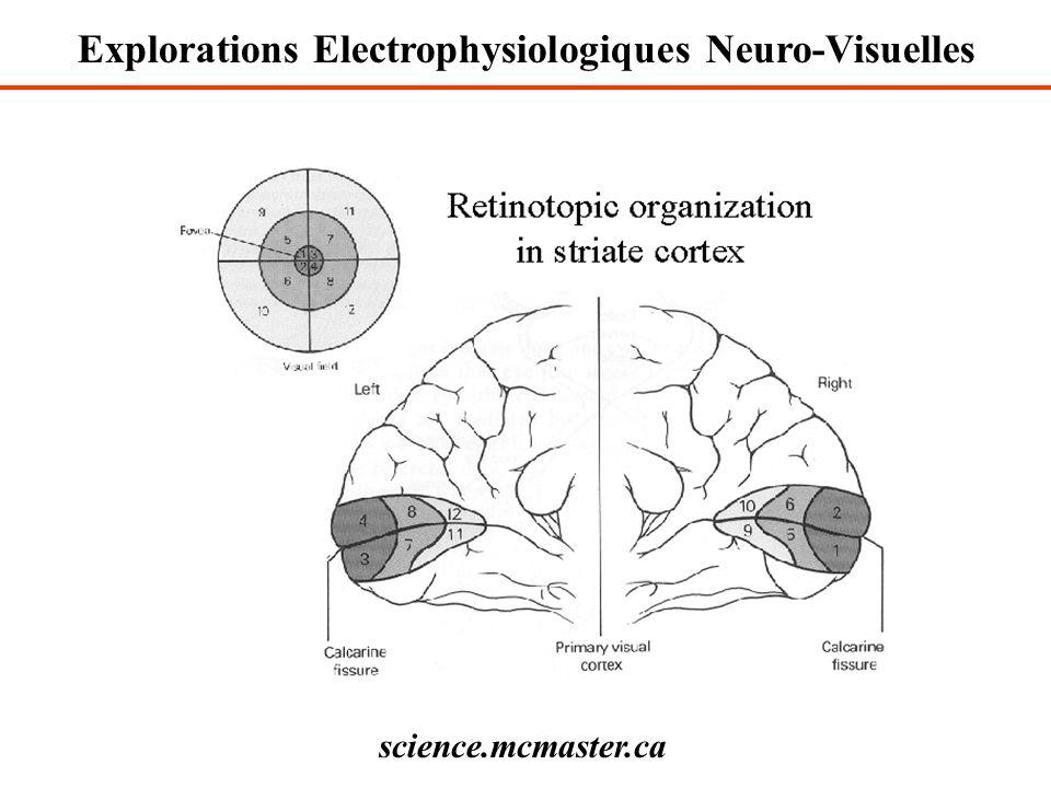 Explorations Electrophysiologiques Neuro-Visuelles