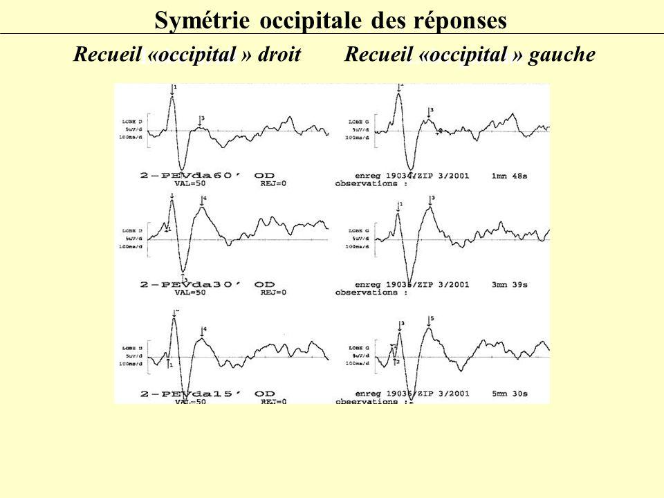 Symétrie occipitale des réponses