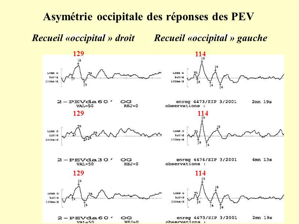 Asymétrie occipitale des réponses des PEV