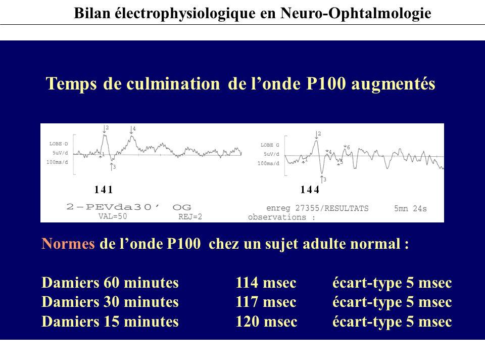 Temps de culmination de l'onde P100 augmentés