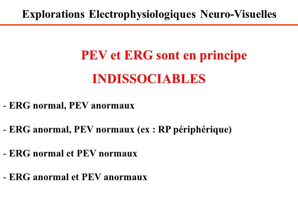 PEV et ERG sont en principe INDISSOCIABLES