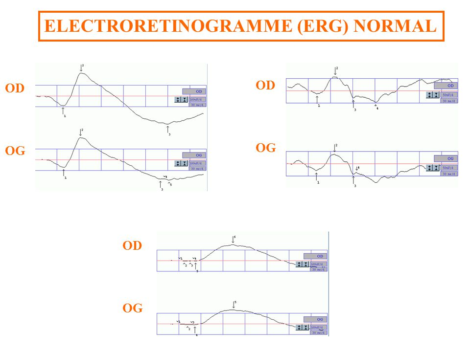 ELECTRORETINOGRAMME (ERG) NORMAL