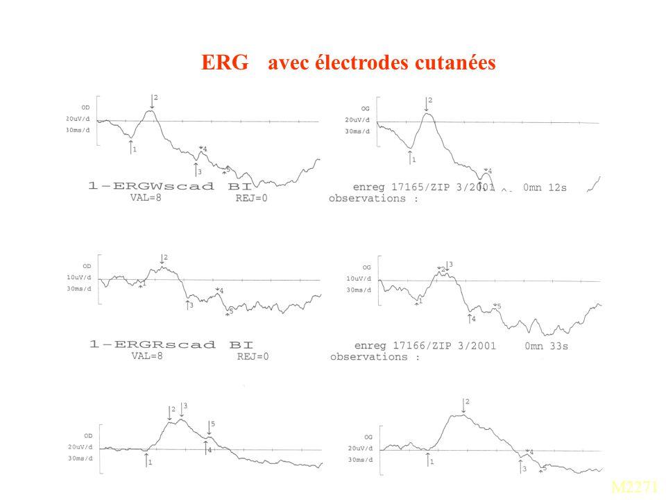 ERG avec électrodes cutanées
