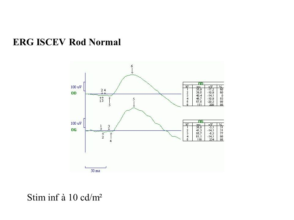 ERG ISCEV Rod Normal Stim inf à 10 cd/m²