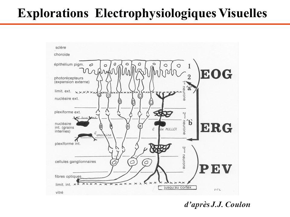 Explorations Electrophysiologiques Visuelles