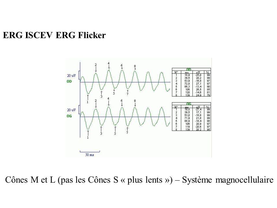 ERG ISCEV ERG Flicker Cônes M et L (pas les Cônes S « plus lents ») – Système magnocellulaire