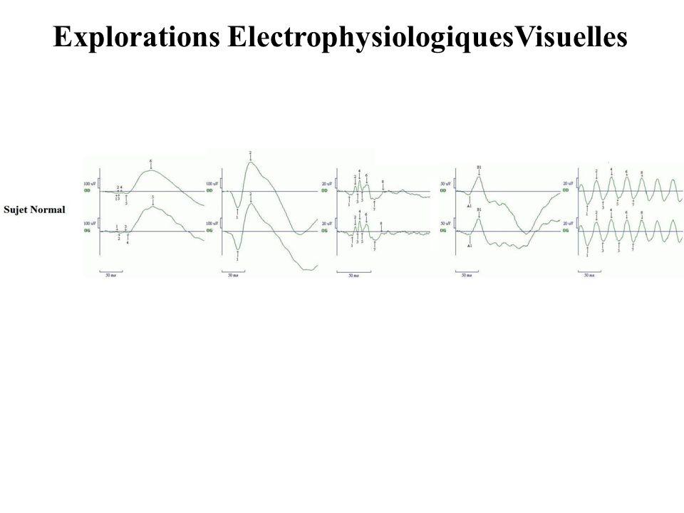 Explorations ElectrophysiologiquesVisuelles