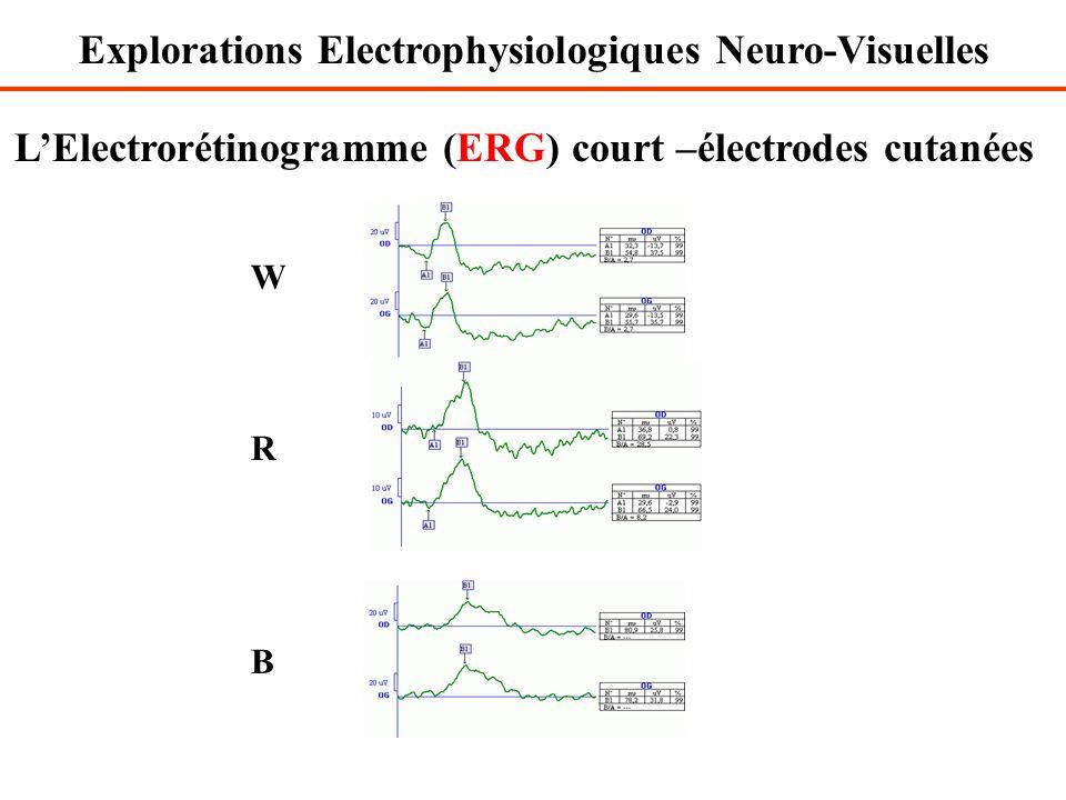 L'Electrorétinogramme (ERG) court –électrodes cutanées