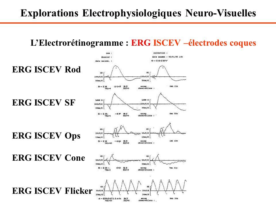 L'Electrorétinogramme : ERG ISCEV –électrodes coques