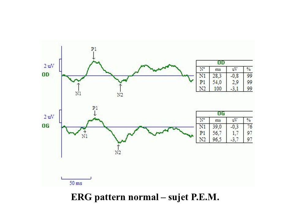 ERG pattern normal – sujet P.E.M.