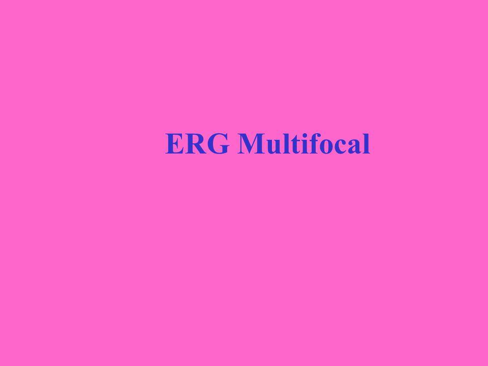 ERG Multifocal