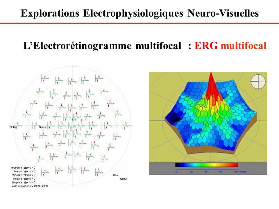 L'Electrorétinogramme multifocal : ERG multifocal