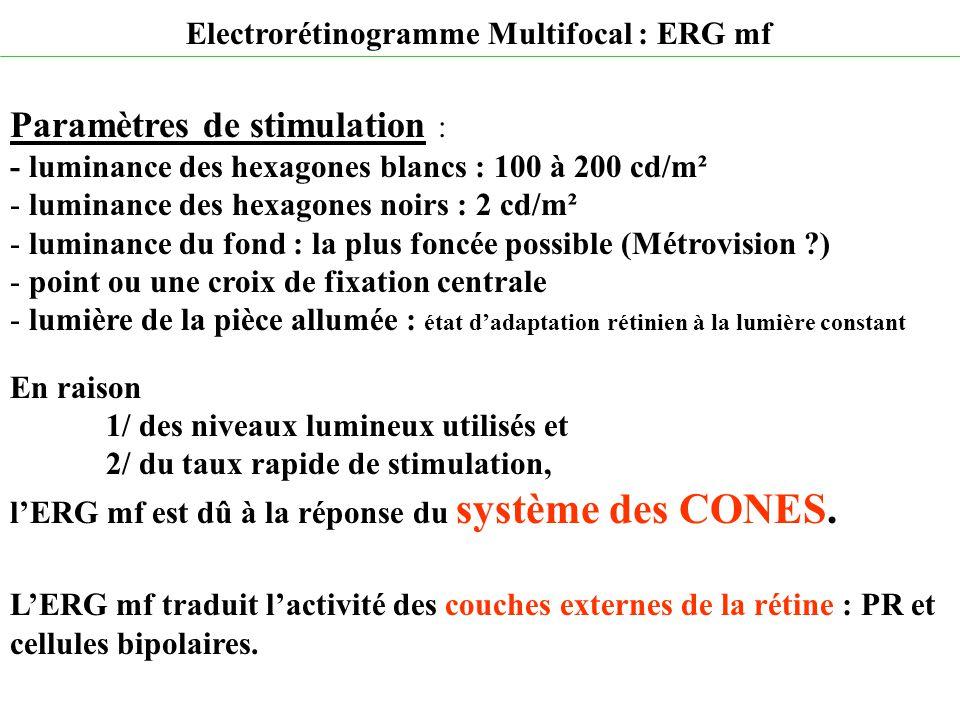 Paramètres de stimulation :