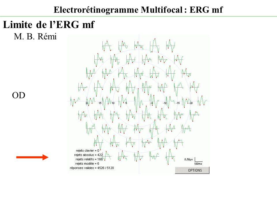 Limite de l'ERG mf Electrorétinogramme Multifocal : ERG mf M. B. Rémi